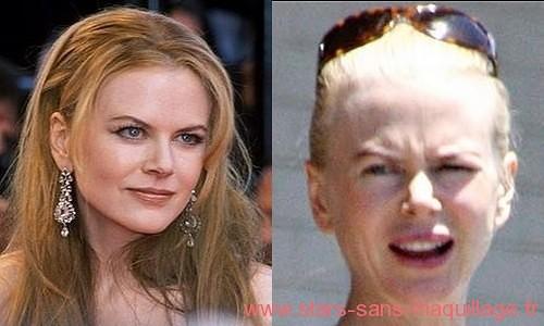 Nicole Kidman sans maquillage