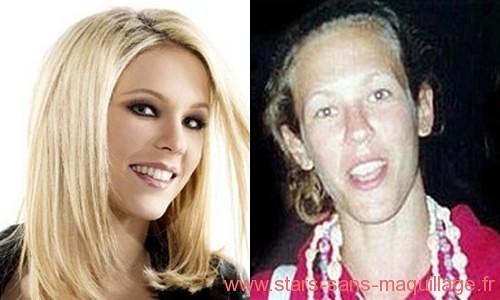 Lorie sans maquillage